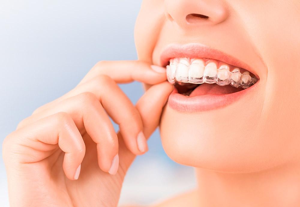 Primer plano de la boca de una joven colocándose un alineador invisible.